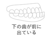下の歯が前に出ている