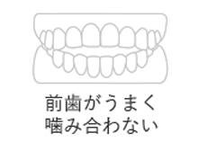 前歯がうまく噛み合わない