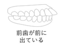 前歯が前に出ている