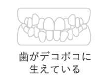 歯がデコボコに生えている