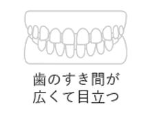 歯のすき間が広くて目立つ