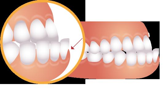 下の歯が前に出ているイラスト