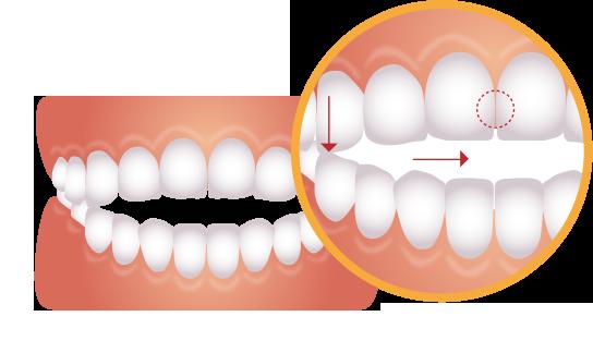 前歯がうまく噛み合わない歯のイラスト