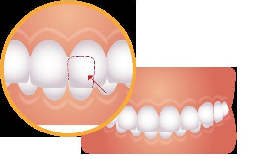 噛み合わせが深い歯のイラスト
