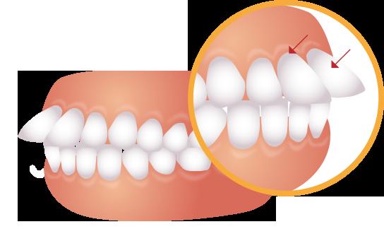 前歯が前に出ているイラスト