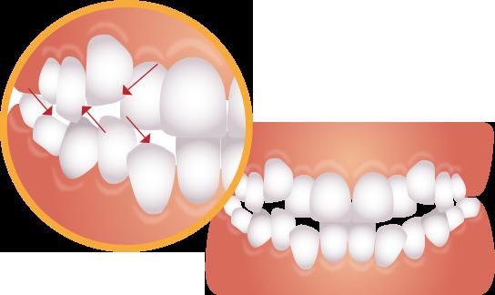 歯がデコボコに生えているイラスト