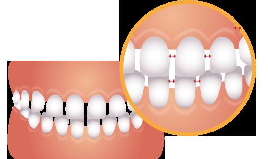 歯のすき間が広くて目立つ歯並びのイラスト