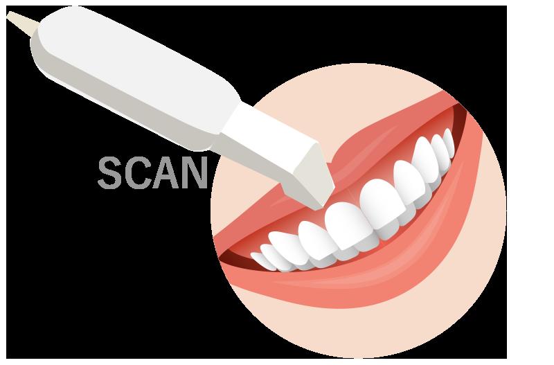 口腔内スキャナーでデータを取得