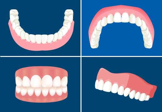 3Dシュミレーションの歯