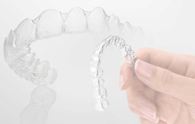 歯列矯正用マウスピース